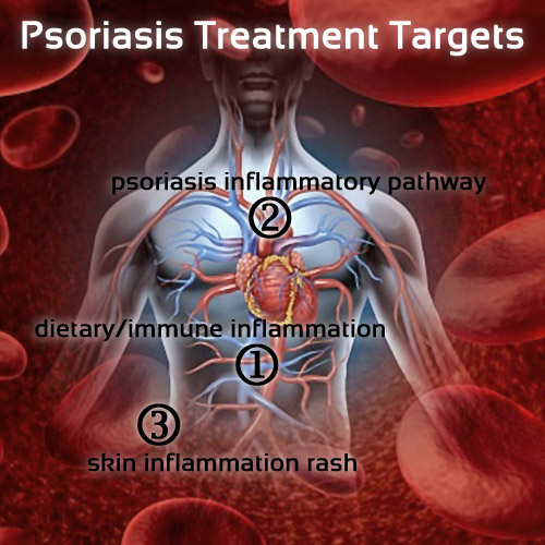 Psoriasis Treatment Targets